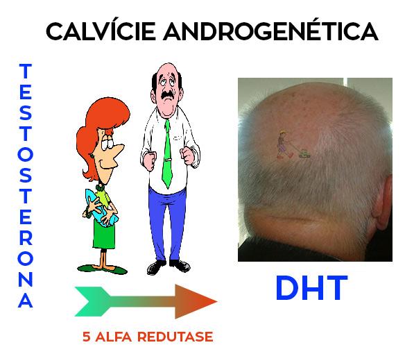 Calvicie Androgenética